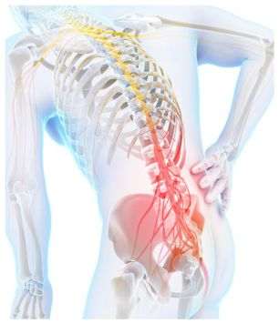 Slipped disc, sciatica, nerve pain