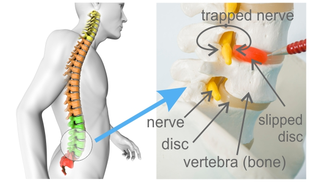 Image showing how nerve is trapped