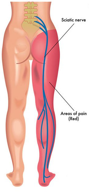 Distirbution of the sciatic nerve